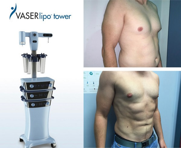 Минимальное количество травм привлекает внимание к липосакции аппаратом Vaser