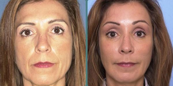 Фото до и после глубокой подтяжки лица