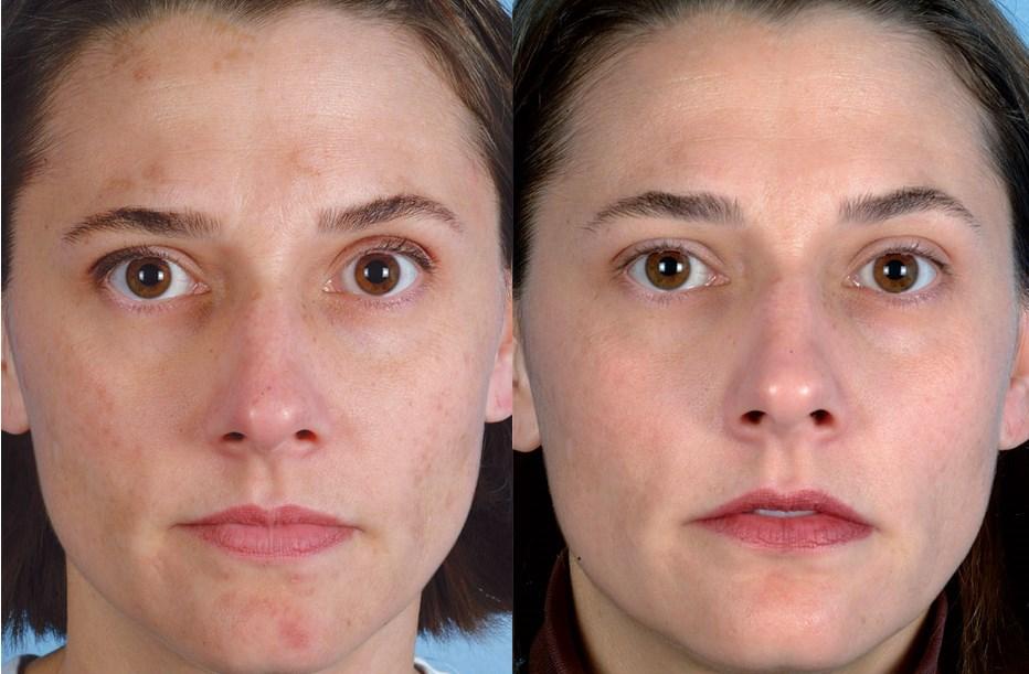 Фото до и после лазерного карбонового пилинга №3