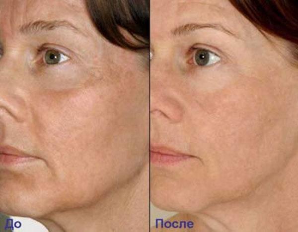 Фото до и после курса процедур дермотонии № 2