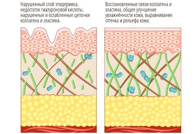 Изменение структуры кожи после прохождения лазеротерапии
