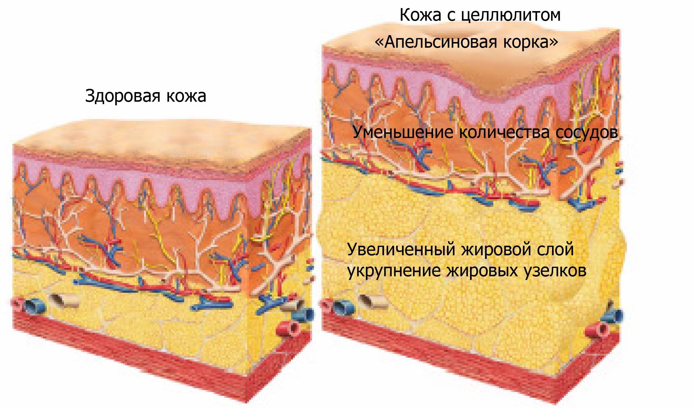 Что такое целлюлит?