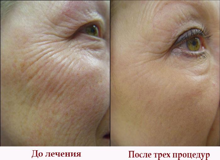 До лечения и после трех процедур