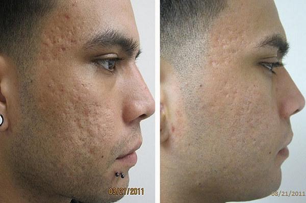 Фото до и после курса процедур криомассажа №3
