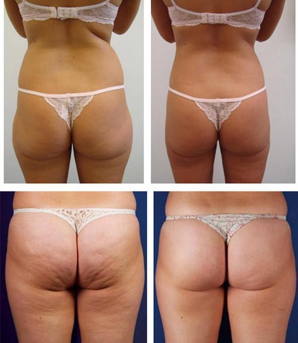 Фото до и после курса процедур парафанго № 2