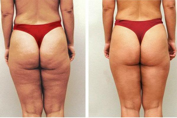 Фото до и после курса процедур парафанго № 3