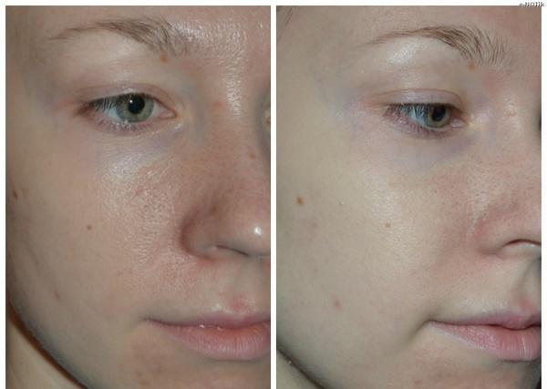 Фото до и после проведения курса процедур ионофореза №1