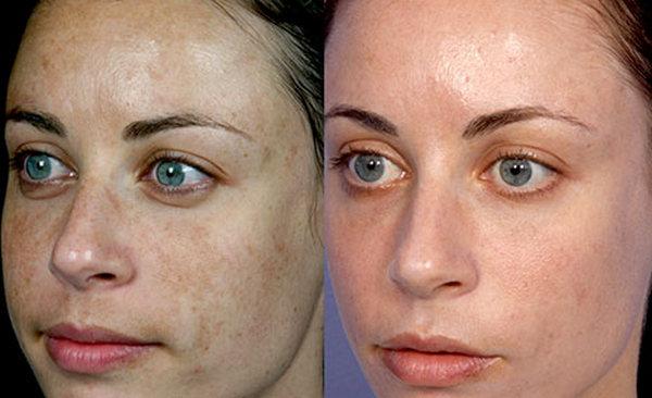 Фото до и после процедуры с лазером Fraxel № 2