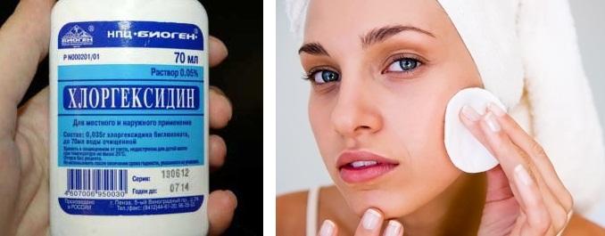 До заживления кожу следует обрабатывать раствором хлоргексидина