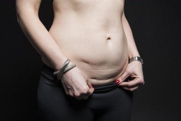 Как подтянуть кожу на животе после родов?