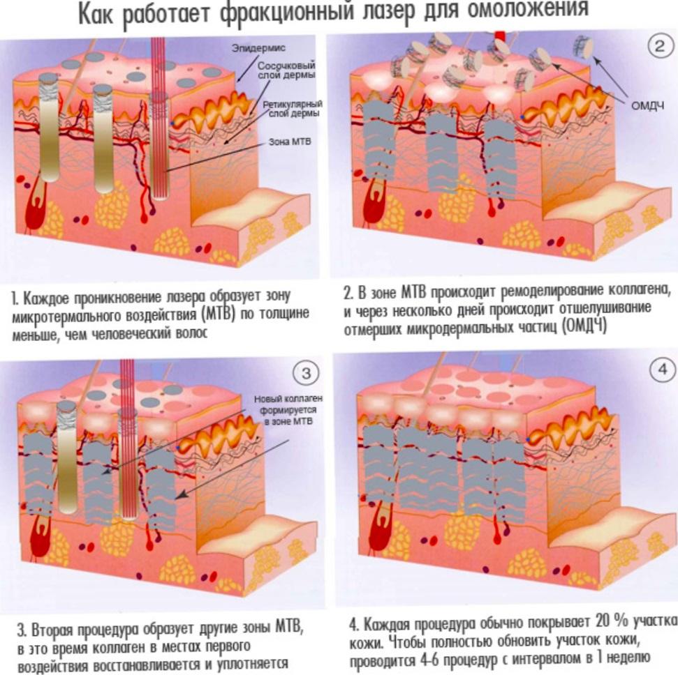 Как работает фракционный лазер для омоложения