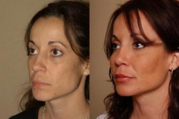 Фото до и после коррекции скул с помощью филлеров