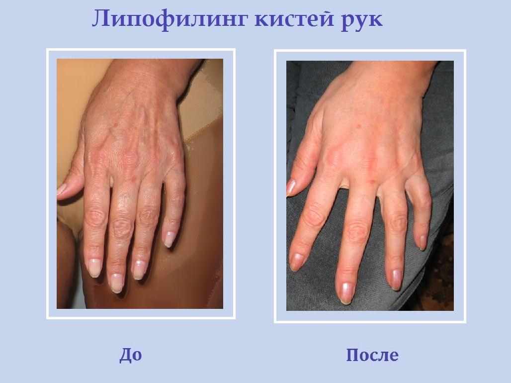 Липофилинг кистей рук