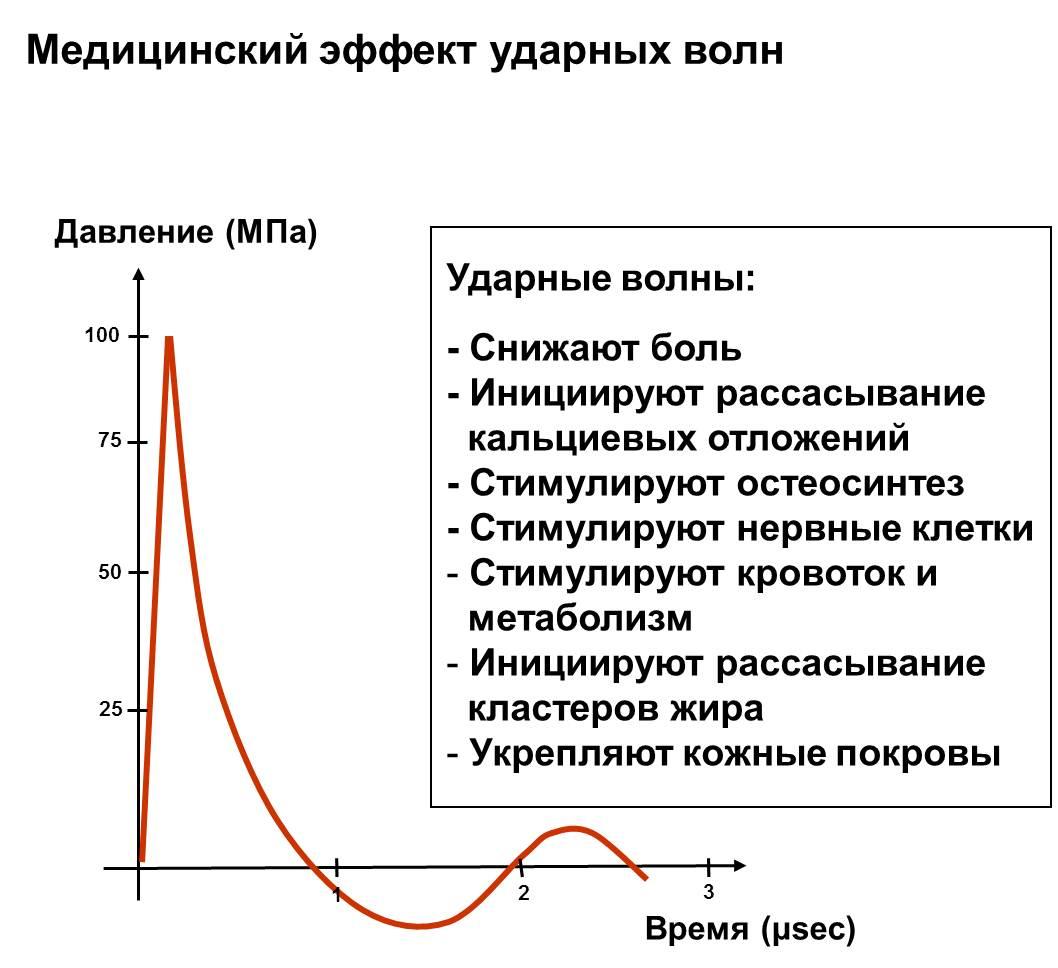 Медицинский эффект ударных волн