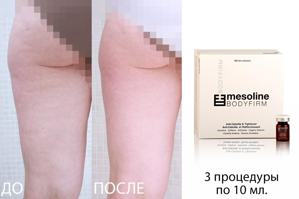 Mesoline BODYFIRM - фото до и после