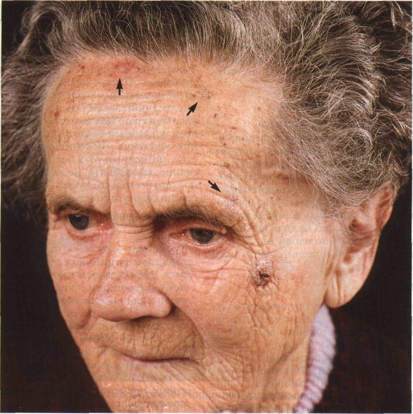 Налицо все проявления тяжелой солнечной геро-дермии — солнечный эластоз, старческое лентиго, солнечный кератоз (показан стрелками)