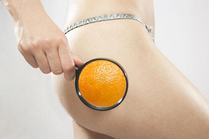 Около 50% женщин отмечают, что страдают от целлюлита с начала полового созревания
