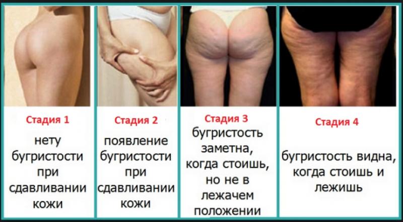 Основные стадии целлюлита