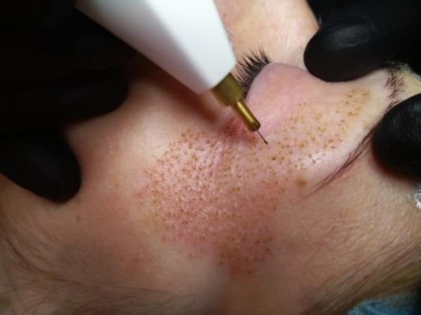 Плазменное омоложение лица – это прицельное бесконтактное воздействие на кожу