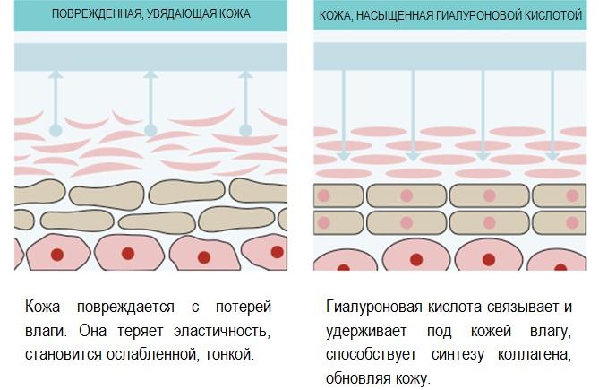 Поврежденная кожа и кожа, насыщенная гиалуроновой кислотой