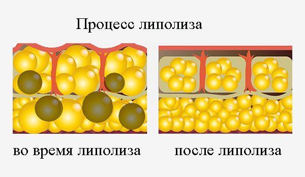 Расщепление жировых клеток или процесс липолиза