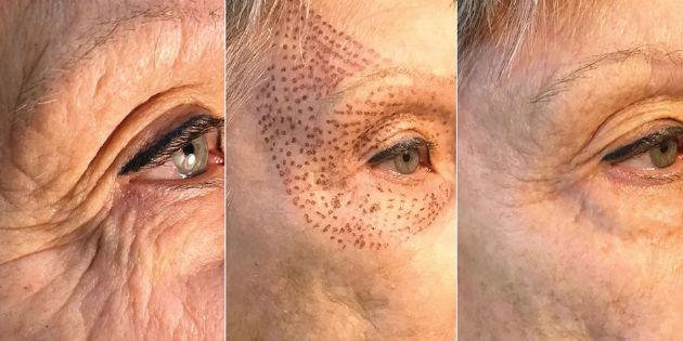 Состояние кожи до и после проведения процедуры