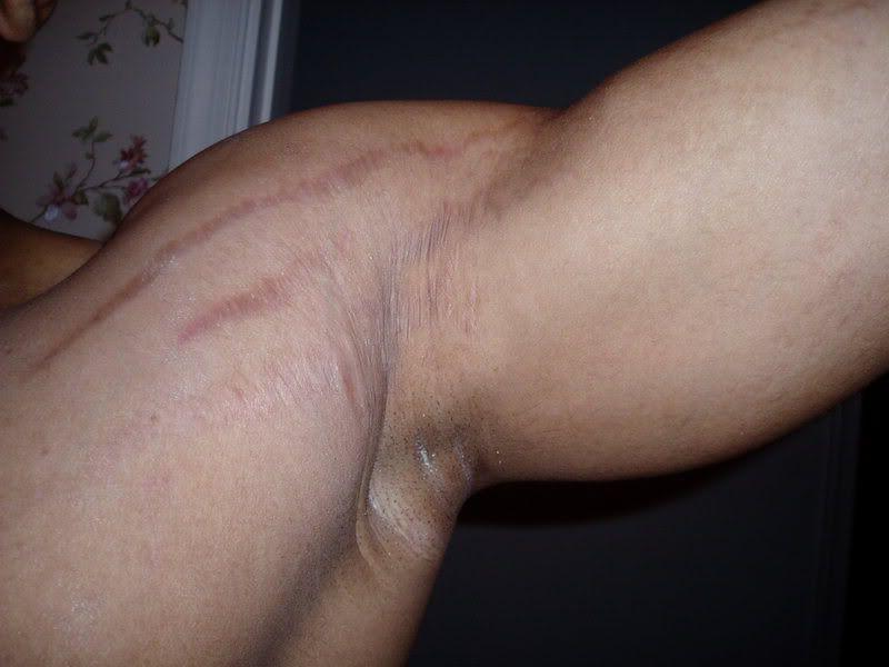 У спортсменов растяжки могут появляться в области плеч