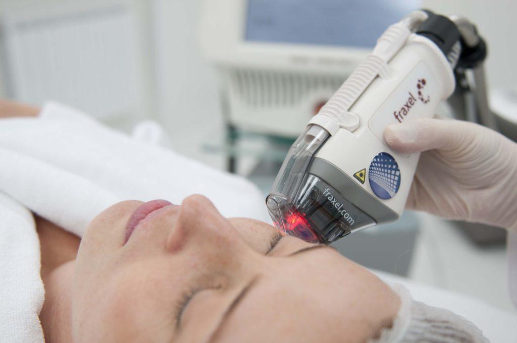 В ходе процедуры используется лазерная установка Fraxel