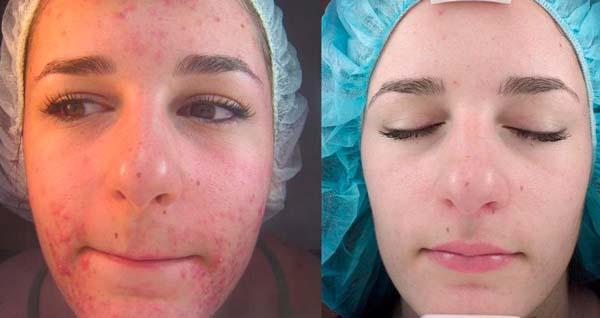 Фото до и после вакуумной чистки лица №2