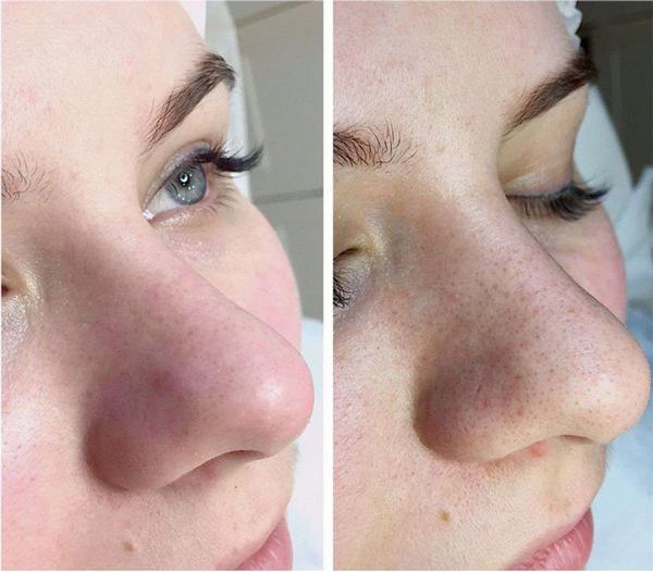 Фото до и после вакуумной чистки лица №1