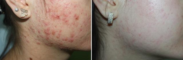 Фото до и после лазерного лечения №3