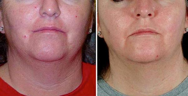 Фото до и после курса процедур алмазной дермабразии №2