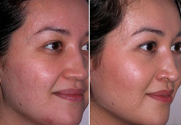 Фото до и после курса процедур алмазной дермабразии №1