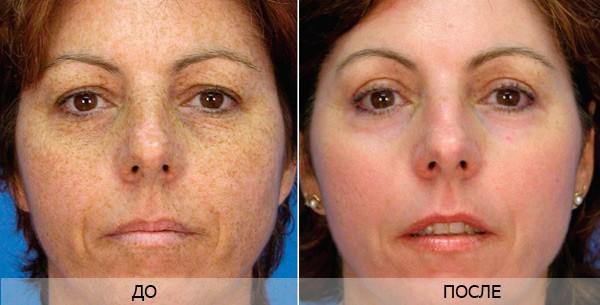 Фото до и после шлифовки лазером