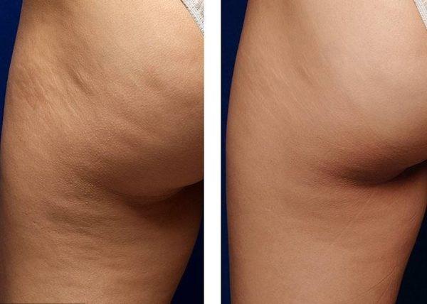 Фото до и после курса процедур дарсонвализации №1