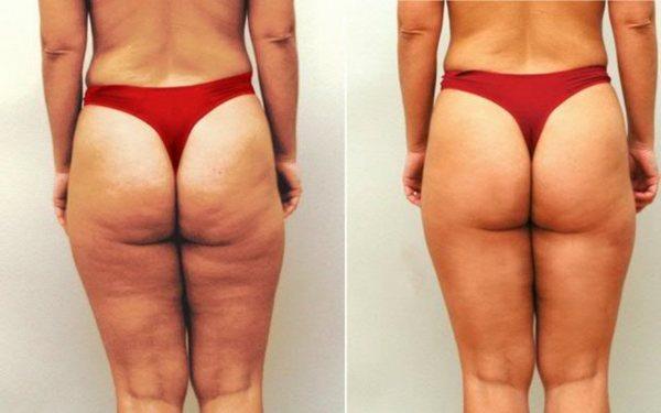 Фото до и после курса процедур дарсонвализации №2