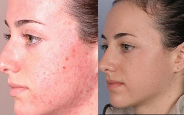 Можно улучшить состояние кожи путём дермабразии