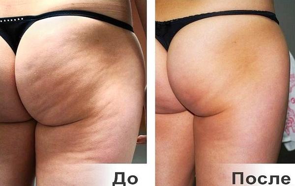 Фото до и после курса процедур дермотонии № 3
