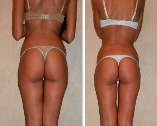 Фото до и после курса процедур медового антицеллюлитного массажа №1