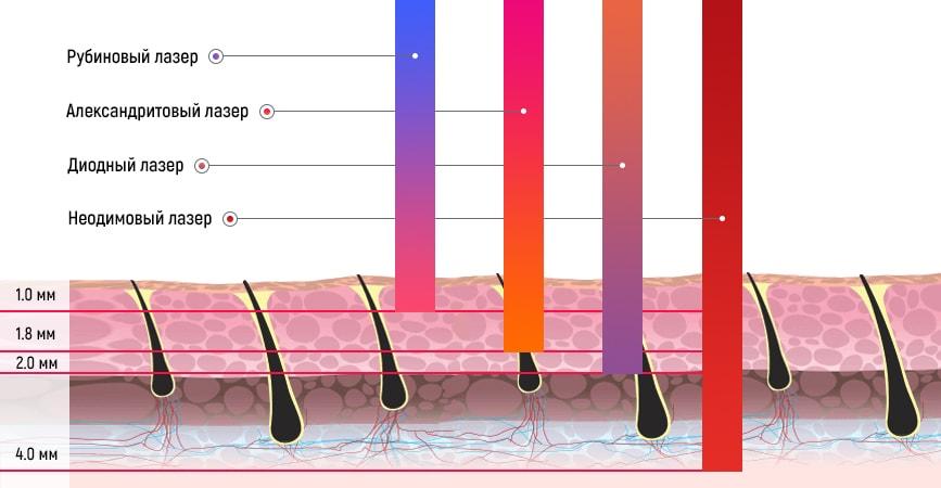 Неодимовый лазер позволяет воздействовать на глубокие слои кожи