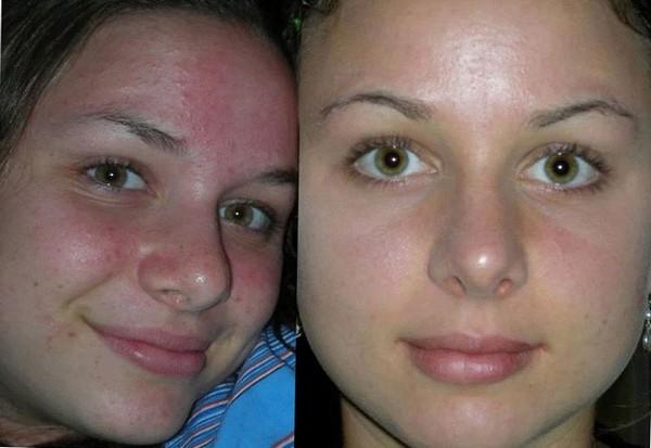 Фото до и после дезинкрустации №1
