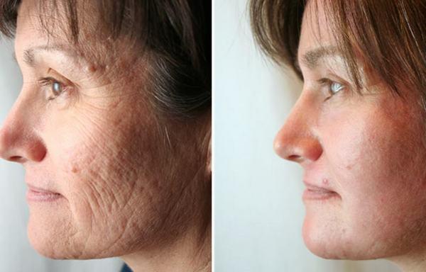 Фото до и после лазерной дермабразии