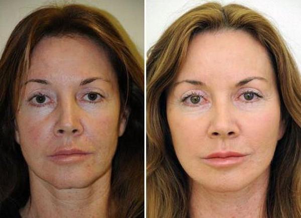 Фото до и после процедуры ДОТ-омоложения №1