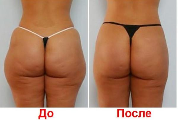 Фото до и после курса процедур мезодиссолюции №1