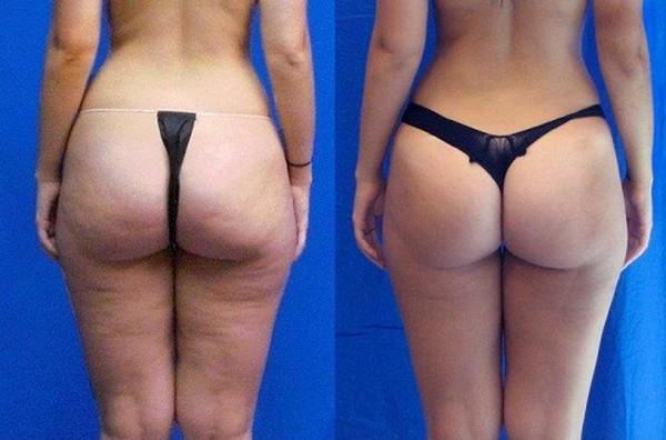 Фото до и после курса процедур с использованием аппарата Vela Shape №1