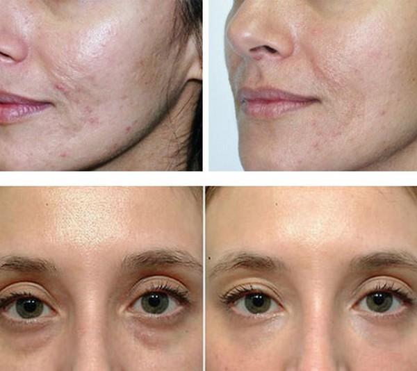 Фото до и после курса процедур кислородной мезотерапии №1