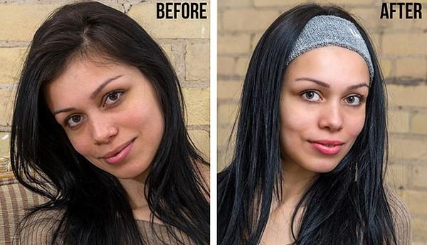 Фото до и после курса LPG массажа лица №1