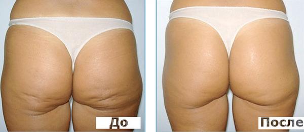 Фото до и после курса Эндосфера терапии №2