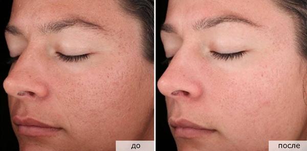 Фото до и после алмазной дермабразии