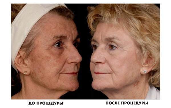 Фото до и после процедуры ДОТ-омоложения №2